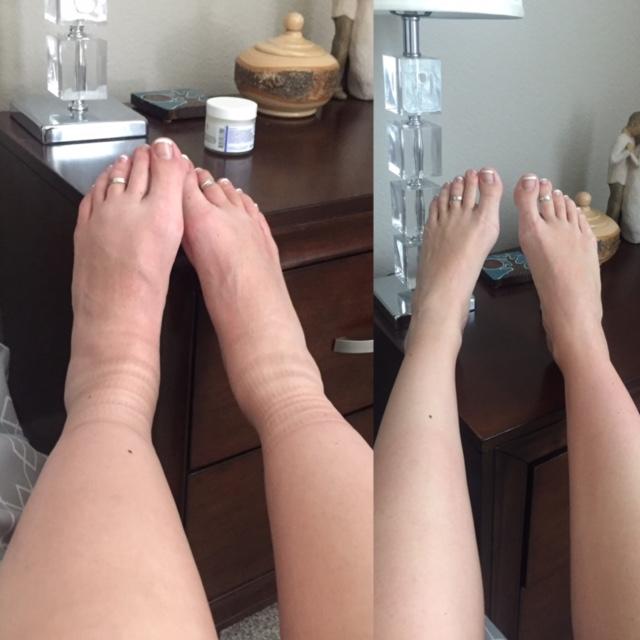 feet swollen pregnancy photos